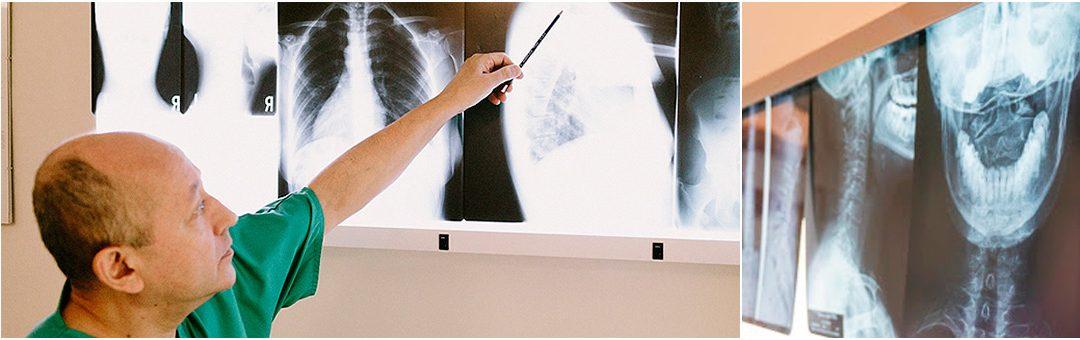 Respuestas y recomendaciones a problemas comunes de espalda