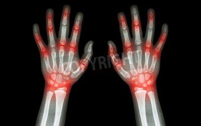 Quiropráctica: Artrosis en las Articulaciones