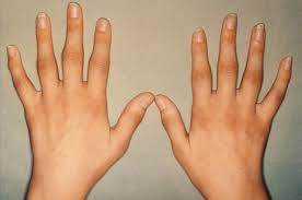 Quiropráctica: Reumatismo, Artritis y Artrosis son diferentes estados de un mismo problema.